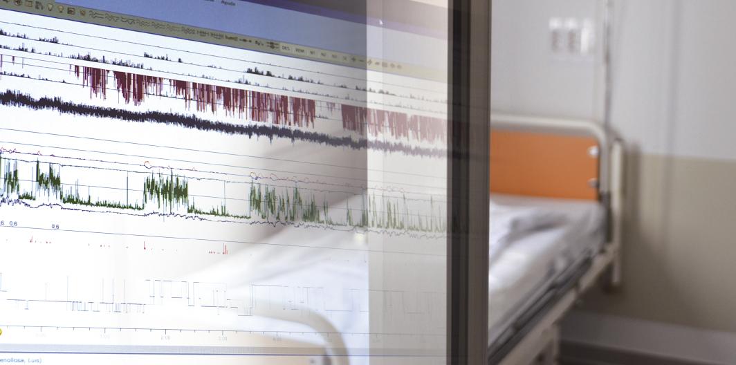 Unidad del sueño del Servicio de Neumología Hospital Clínico Universitario de Valencia