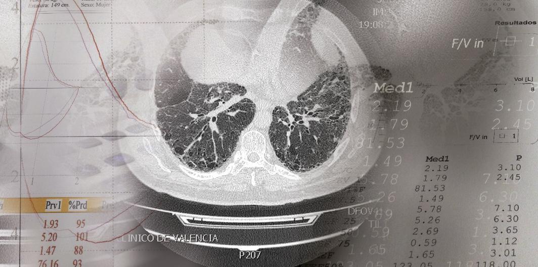 consulta-enfermedad-intersticial