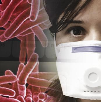 Consulta monográfica de Tuberculosis-Bronquectasias Hospital Clínico Universitario de Valencia