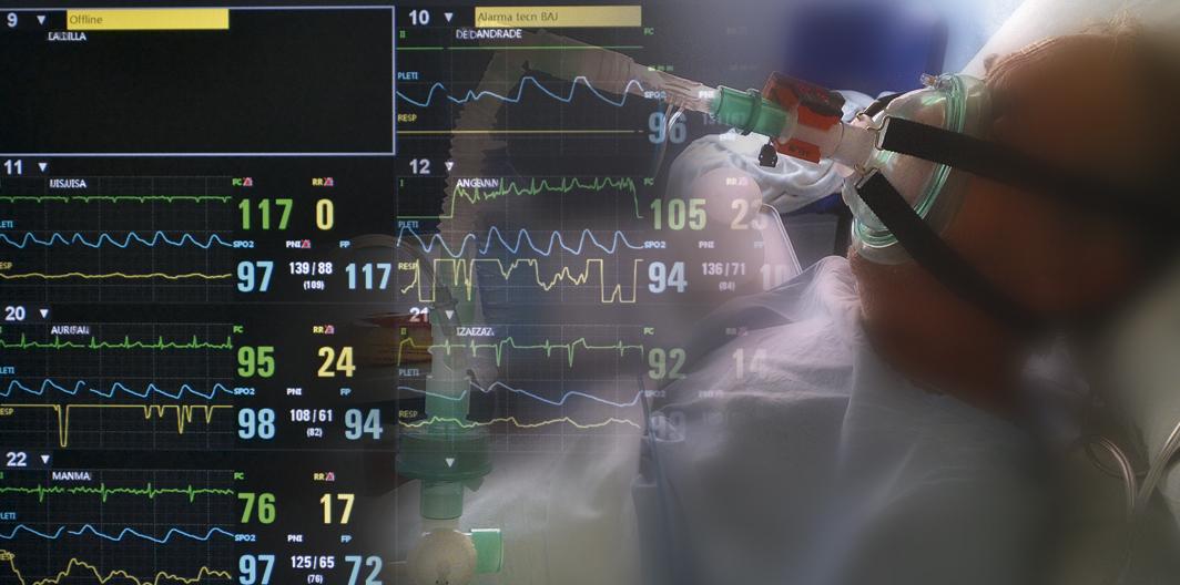Unidad de Cuidados Respiratorios servicio de Neumología Hospital Clínico Universitario de Valencia